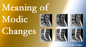 Poulin Chiropractic of Herndon and Ashburn sees many back pain and neck pain patients who bring their MRIs with them to the office. Modic changes are often noted.