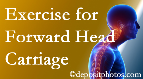 Ashburn chiropractic treatment of forward head carriage is two-fold: manipulation and exercise.