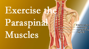 Poulin Chiropractic of Herndon and Ashburn describes the importance of paraspinal muscles and their strength for Ashburn back pain relief.