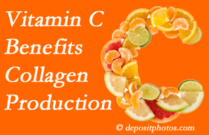 Ashburn chiropractic offers tips on nutrition like vitamin C for boosting collagen production that decreases in musculoskeletal conditions.