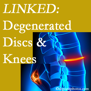 Degenerated discs and degenerated knees are not such strange bedfellows. They are seen to be related. Ashburn patients with a loss of disc height due to disc degeneration often also have knee pain related to degeneration.